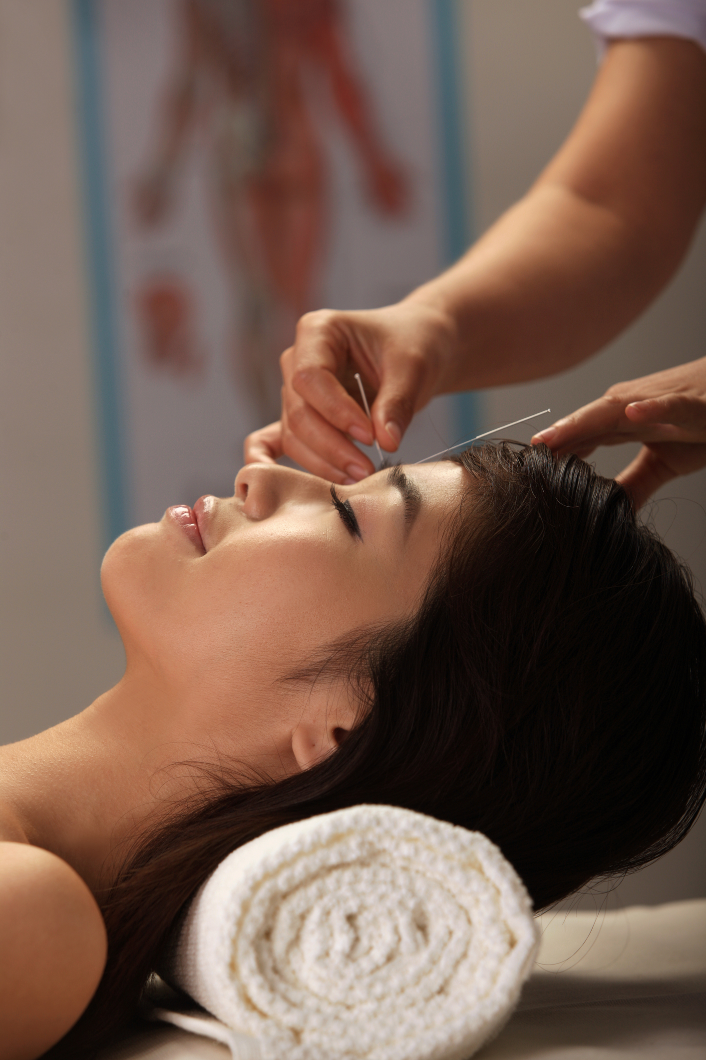 woman getting cosmetic acupuncture