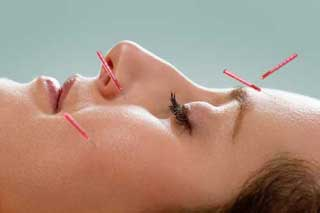 Woman laying on her back having Cosmetic, facial acupuncture