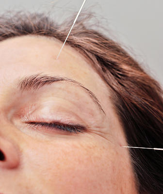 woman getting cosmetic acupuncture around the eyes in cordova tn